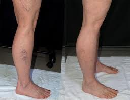 Tattoo Removal Denver